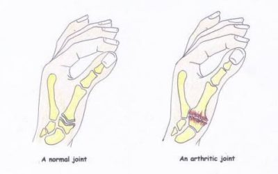 Base of thumb pain – is there something I can do?