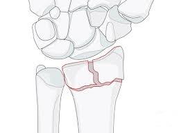 A Broken Wrist – Distal Radius fracture.