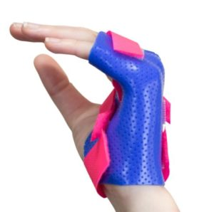 Custom made splints